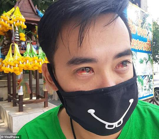 Thủ đô Thái Lan ô nhiễm nặng, người dân ho ra máu - Ảnh 1.