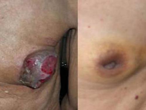ung thư vú ở nam