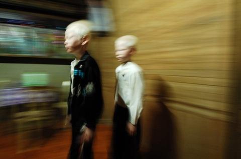 cặp song sinh bạch tạng ở Hà Tĩnh