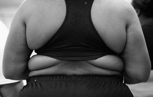 thừa cân