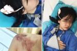 Thiếu nữ bị ôtô va chạm, máu đầm đìa: Tài xế vô cảm chạy luôn giữa Sài Gòn
