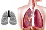 43% ca tử vong do bệnh lý hô hấp liên quan đến ô nhiễm không khí