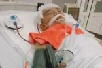Tai nạn thương tâm tại nhà: Trẻ bị que sắt cắm vào đầu, bị chó cắn vào mặt