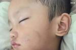Cháu bé hai tuổi nghi bị bạn trai của mẹ ruột đánh đập