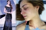 Hoa hậu Trái Đất Venezuela bị ca sĩ đánh đến nhập viện